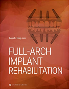 Full Arch Implant Rehabilitation PDF Free