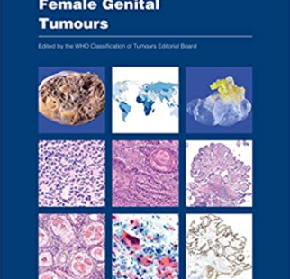 WHO Classification of Tumours Female Genital Tumours 5th Edition PDF free